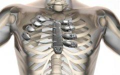 西班牙患者植入全球最复杂3D打印金属胸骨