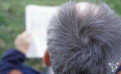 头发变白的真凶找到了 不用再染发?